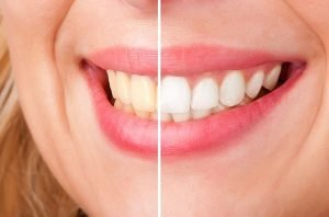 A Plus Dental | Teeth Whitening | Dentist Campbelltown
