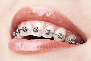 Dental Braces | Dentist Campbelltown