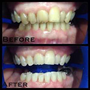 Philiips Zoom Whitening Before and After 2 | Dentist Campbelltown