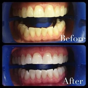 Philiips Zoom Whitening Before and After | Dentist Campbelltown