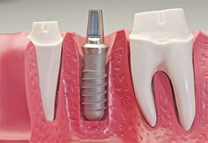Dental Implants | Dentist Campbelltown