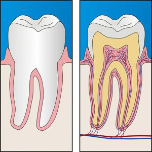 Root Canal Theraphy | Dentist Campbelltown