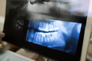 A Plus Dental | Diseases Of The Jaw | Dentist Campbelltown