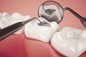A Plus Dental | Lost Damaged Fillings, Crown Or Inlay Onlay | Dentist Campbelltown