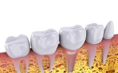 Dental Implants and Missing Teeth: How A Plus Dental Can Help