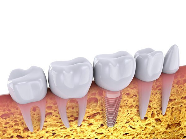 Dental Implants and Missing Teeth: How Your Campbelltown Dentist Can Help
