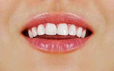 6 Effective Ways To Get Healthy White Teeth