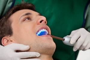 Dental Sealants | Dentist Campbelltown