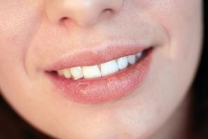 Dry Mouth Treatment | Dentist Campbelltown