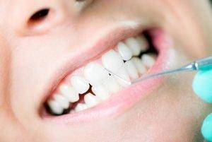 Gum Disease Treatment | Dentist Campbelltown