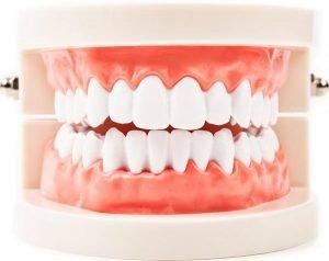 Periodontics | Dentist Campbelltown