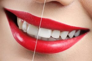 Campbelltown Dentist tips on Brightening your Teeth